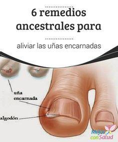 6 remedios ancestrales para aliviar las uñas encarnadas  La onicocriptosis, mejor conocida en el lenguaje popular como uña encarnada, es una condición médica que se produce cuando la uña se queda incrustada en la piel del dedo.