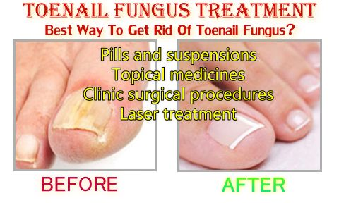 Find our what are the most effective toenail fungus treatment, home treatments, risks and ways to prevent toenail fungal infection. http://www.toenailfungus.biz/treatment