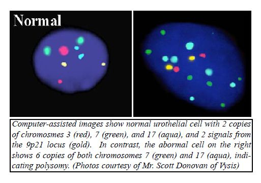 Using Fluorescent in Situ Hybridization (UroVysion™ FISH) - normal urothelial cell with 2 copies of chromosmes 3,7,17 and 2 signals from 9p21 locus. http://www.propath.com/companies/press-clippings/26-newsletters/205-using-fluorescent-in-situ-hybridization-urovysion-fish-june-2004