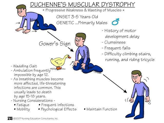 Nursing Mnemonics and Tips: Duchennes Muscular Dystrophy