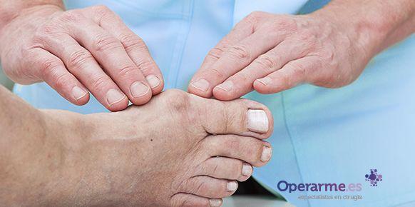 Los dedos martillo se producen en muchos casos debido a la desviación que provoca los juanetes. Conoce cómo se corrige el dedo martillo y los juanetes aquí.