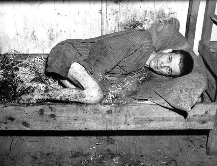 An inmate at Mauthausen-Gusen concentration camp is photographed near death and lying in his own filth after the camp was liberated by the 11th Armored Division, United States Army Central. Mauthausen-Gusen formed one of the first massive concentration camp complexes in the Reich, and were the last ones to be liberated by the Allies.