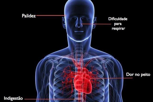Cadê Saúde 2014: Sintomas de infarto (para Homens e Mulheres)