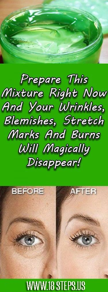 Prepare This Mixture Right Now And Your Wrinkles, Blemishes, Stretch Marks And Burns Will Magically Disappear! – 18Steps