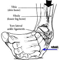 Cuboid Subluxation Syndrome is a Pain on the Outside of Your Foot | Foot and Ankle Associates of North Texas, LLP