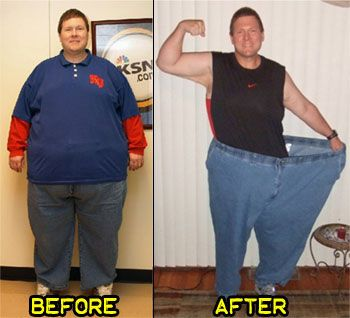 Ultralite weight loss united states