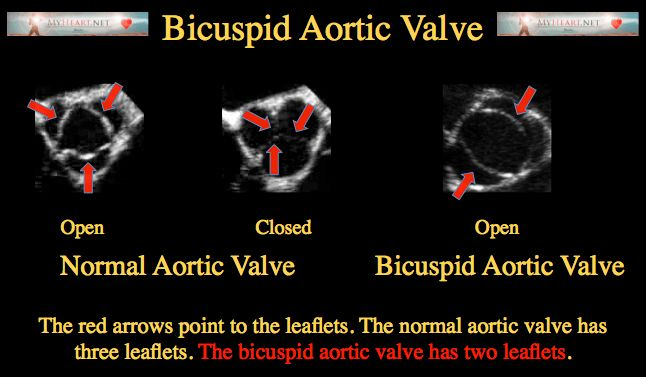 A comprehensive yet easy to understand synopsis of the bicuspid aortic valve. Covers symptoms, diagnosis, treatment, and tips for patients.