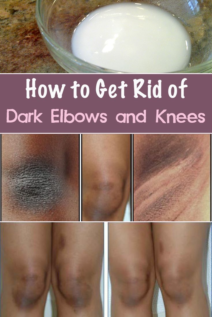 These natural remedies can help you have a pleasant appearance of elbows and knees and get rid of the darker color and dryness in these areas.