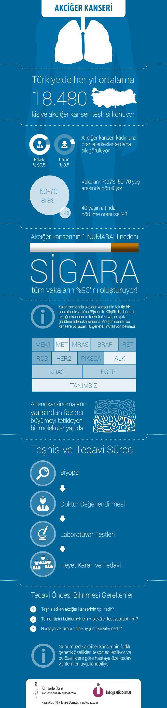 Akciğer Kanseri Hakkında #infografik