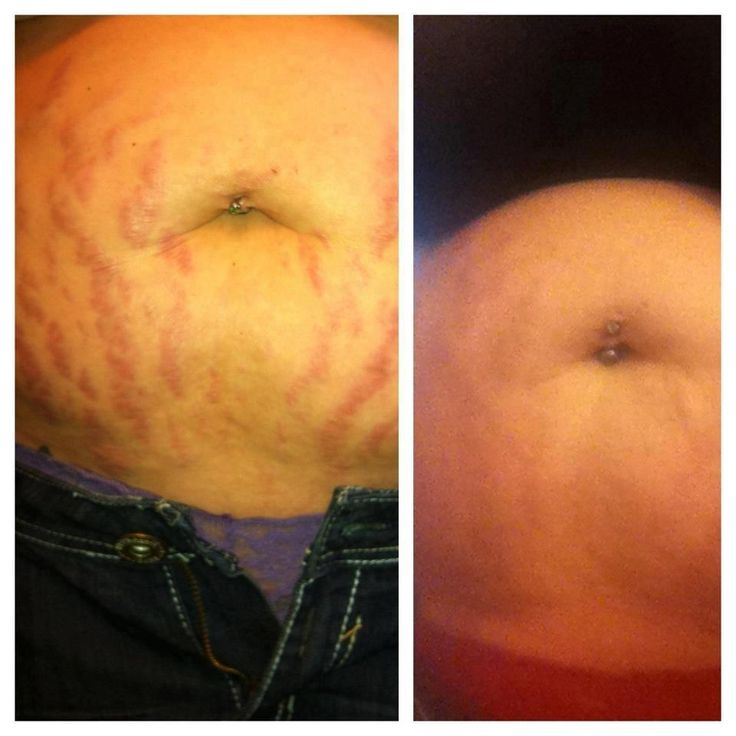 This is before and after 30 DAYS using our Stretch Mark Cream which is ...