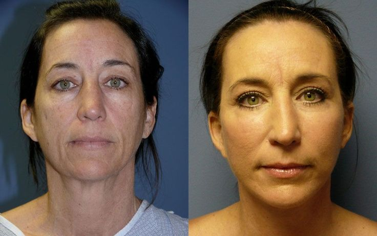 Flexing Your Face Via Yoga Facelift Workouts To Acquire A Natural Facelift