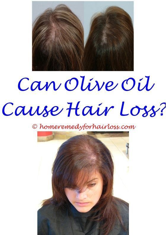 Thyroid Problems Causes Hair Loss Best Oil For Hair Loss Control