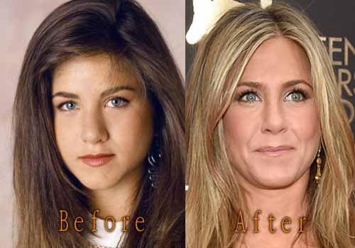 Jennifer Aniston Plastic Surgery . #jenniferaniston #celebritysurgery #nosejob #boobjob