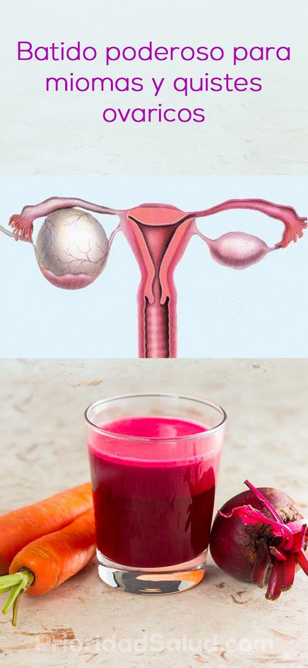 Remedios para miomas uterinos y quistes de los ovarios.