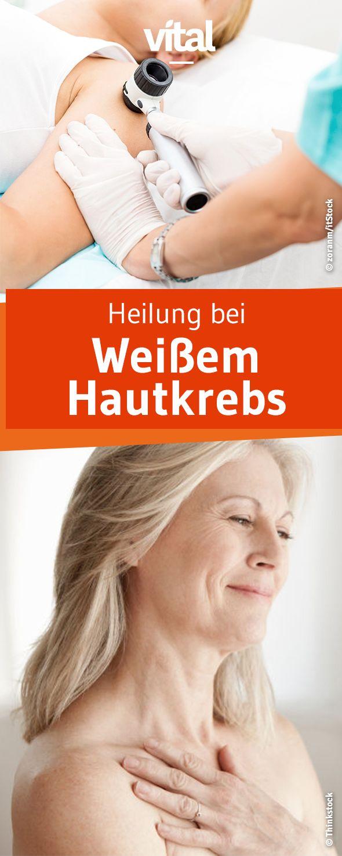 Die gute Nachricht zuerst: Weißer Hautkrebs ist fast immer heilbar – wenn er früh erkannt wird. Alles, was wir über Vorsorge und erfolgreiche Behandlungsmethoden wissen sollten, erklärt Prof. Volker Steinkraus.