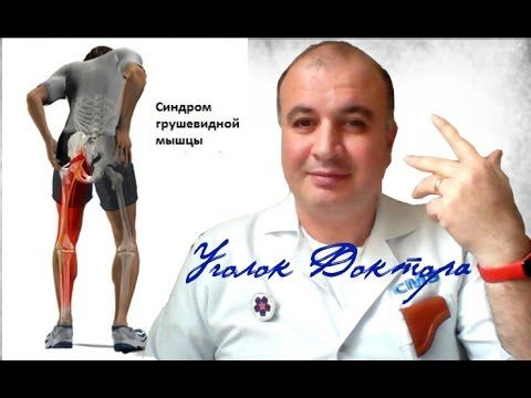 Что такое синдром грушевидной мышцы (ишиас)?
