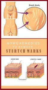 Stretch marks can be found all over the body, and they affect both men and women. The main causes of stretch marks are pregnancy and rapid weight gain or weight loss. Other factors that can cause stretch marks include stress, heredity and rapid growth. What causes Stretch Marks? The exact cause of stretch marks is …
