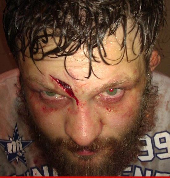 Roy Nelson via Werdum, and he said he wasnt rocked once! I just watched this fight. Country is one of the toughest fighters I've ever seen!