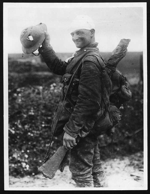 """Saved by shrapnell [sic] helmet."" Soldier demonstrates his scar and pierced helmet, during World War I. This photograph would have made ideal propaganda material as its accompanying caption demonstrates. The soldier in the middle of the scene is happy and triumphant. Despite the bandaging on his head, he is still carrying all his equipment and looks ready for action."