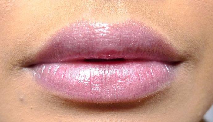 Vollere, weelderige lippen – dat is niet alleen mooi, maar ook supersensueel, zegt men. Heel wat beroemdheden zijn op zoek naar het perfecte mondje en ze maken hun glimlach nog wat mooier met een beetje cosmetische plastische chirurgie. Wil jij dat ook graag? Wil je weten hoe lang de resultaten aanhouden? Wil je supervolle lippen of dun geworden lippen weer wat voller laten worden? Lees meer: http://www.wellnesskliniek.com/nl/plastische-chirurgie/lippen