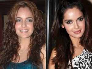 Shazahn Padamsee - List of Celebrities Who Had Worst Lip Job