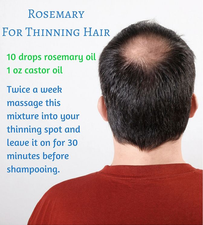 Rosemary For Thinning Hair. Takes up to about 3 months to start noticing growth. Add Thyme to it for a good boost.  Mydoterra.com/oilrevelation