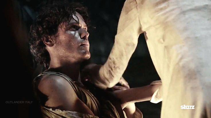 Sam having Claire fix his shoulder