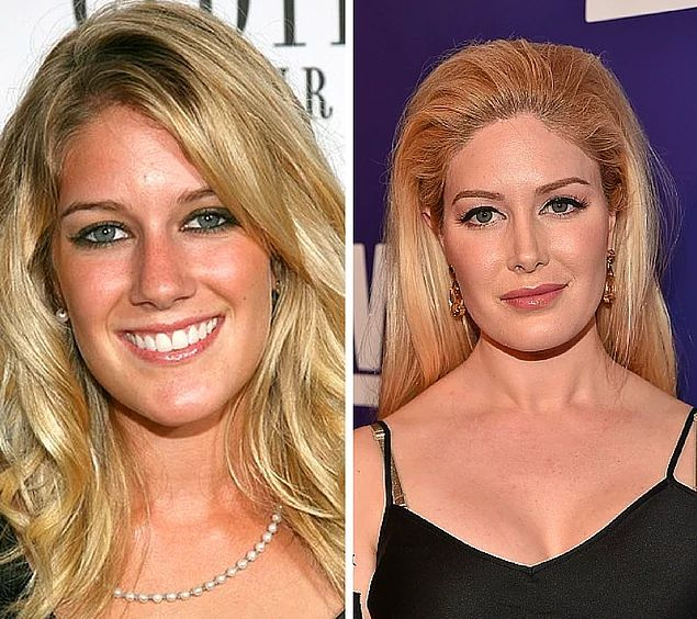 Celebrities With Plastic Surgery Heidi Montag Courteney: 1000+ Ideas About Heidi Montag On Pinterest