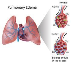 Pulmonary Edema = accumulation of fluid in alveoli resulting in impaired gas exchange & hypoxia. Either cardiogenic or non. Sx = rales, wheezing, pink frothy sputum, peripheral edema, tachy-, S3 gallop, HTN, JVD, A-fib, diaphoresis. Tx = O2 mask, CPAP, nitroglycerin, morphine, diuretics, treat underlying cause.