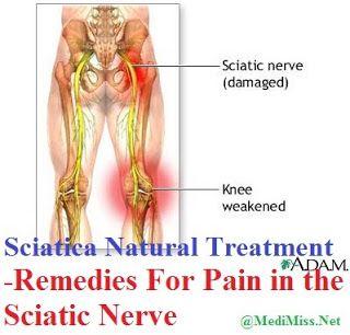 Sciatica Natural Treatment - Remedies For Pain in the Sciatic Nerve