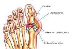 Comment éliminer naturellement les cristaux d'acide urique dans les articulations - Améliore ta Santé