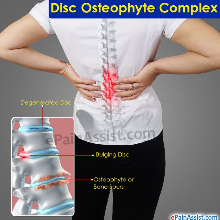 Disc Osteophyte Complex