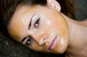 La Maschera per brufoli alla cannella e miele rende la pelle pulita e luminosa. Le proprietà della cannella aiutano a combattere l'acne e i punti neri
