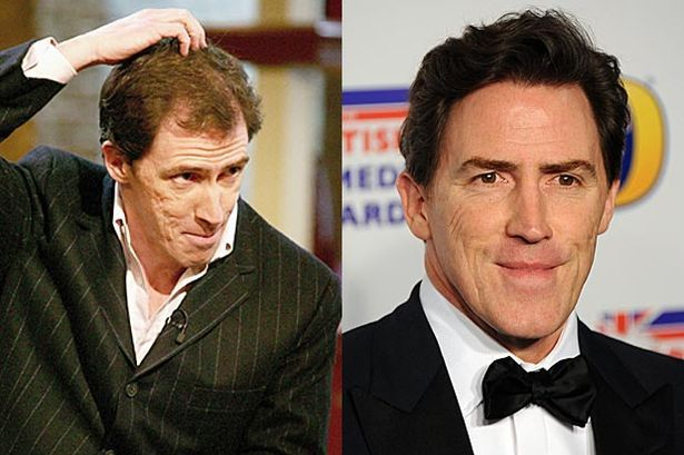 "Rob Brydon  The Gavin and Stacey actor was pictured with a mysteriously thicker head of hair in 2009, fuelling rumours he'd had a hair transplant.  Although he had never confirmed whether or not he has had treatment, when asked about the rumours he joked: ""For some time now my head has been feeling a lot warmer but I was unable to put my finger on the reason why."""
