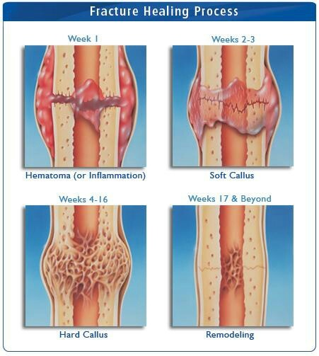 Fracture healing process.