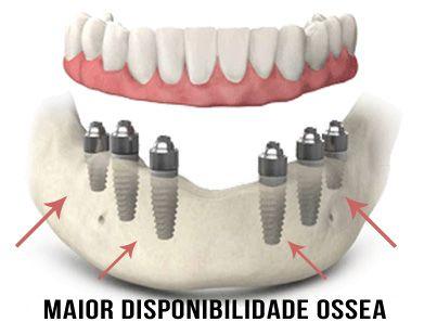 Dependendo de suas circunstâncias , não é incomum para o dentista usar até seis implantes para garantir a estabilidade completa. Isso vai variar de acordo com a condição de sua boca e a experiência de seu dentista , mas a maioria dos pacientes será capaz de desfrutar de um novo sorriso com apenas quatro implantes.