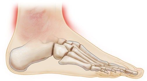 Ankle Pain: What You Can Do To Find Relief #pain #below #ankle #bone #on #outside #of #foot http://oregon.nef2.com/ankle-pain-what-you-can-do-to-find-relief-pain-below-ankle-bone-on-outside-of-foot/  # Ankle Pain: What You Can Do To Find Relief Your ankle is the hinged joint where your foot and leg meet. It is composed of three bones—the tibia, fibula, and talus—and is surrounded by a network of ligaments and tendons. Ankles tend to take on a lot of stress, and are therefore prone to injury…