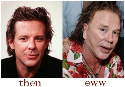 Mickey Rourke Plastic Surgery Before After - http://www.celeb-surgery.com/mickey-rourke-plastic-surgery-before-after/?Pinterest