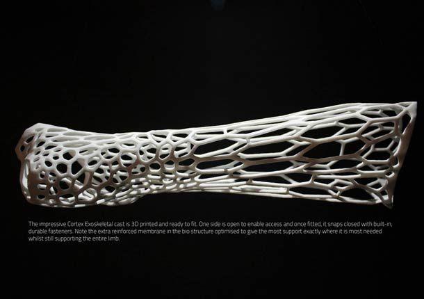 Plâtre à ultrasons réalisé en impression 3d