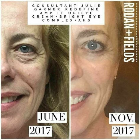 Looking for a complete makeover? Start with your skin care routine! Rodan + Fields skin care is the best #beauty gift you can give this holiday season. Clinically proven to deliver results. Click to order and to review all skin care products. | redefine | http://beautifulclearskin.net/