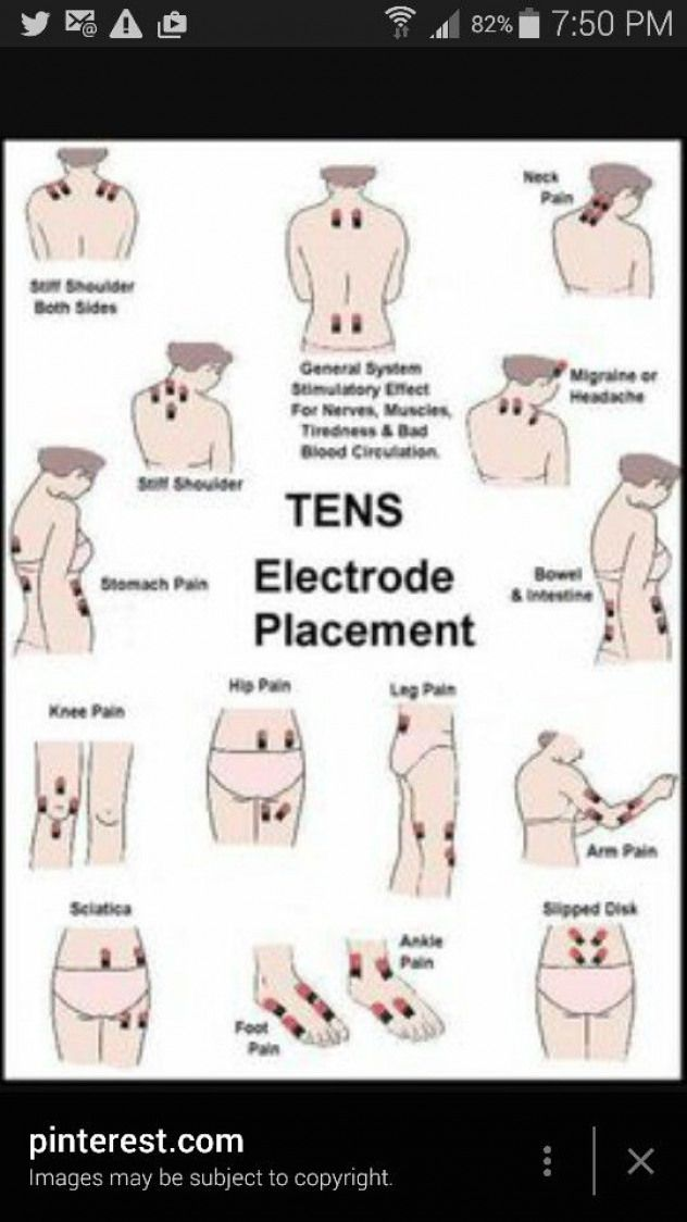 Placement chart for tens pads. #PsoasExercises in 2020 ...