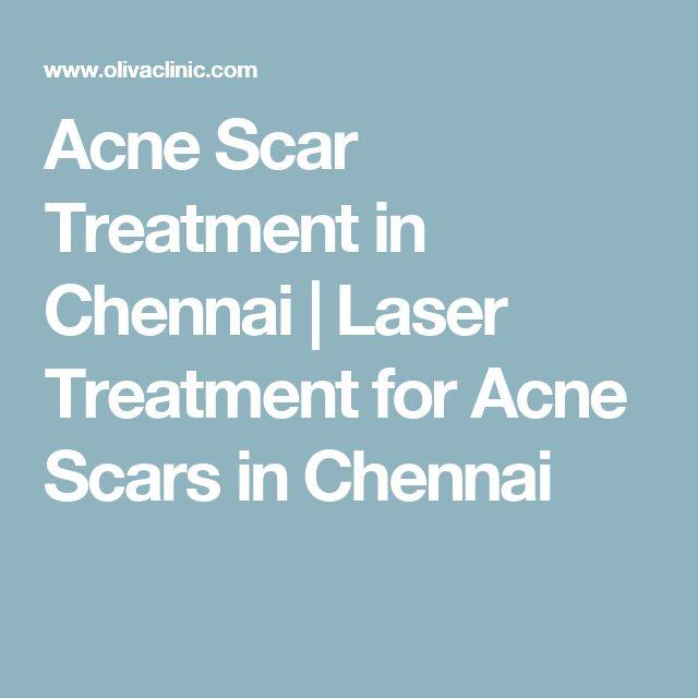 Acne Scar Treatment in Chennai   Laser Treatment for Acne Scars in Chennai