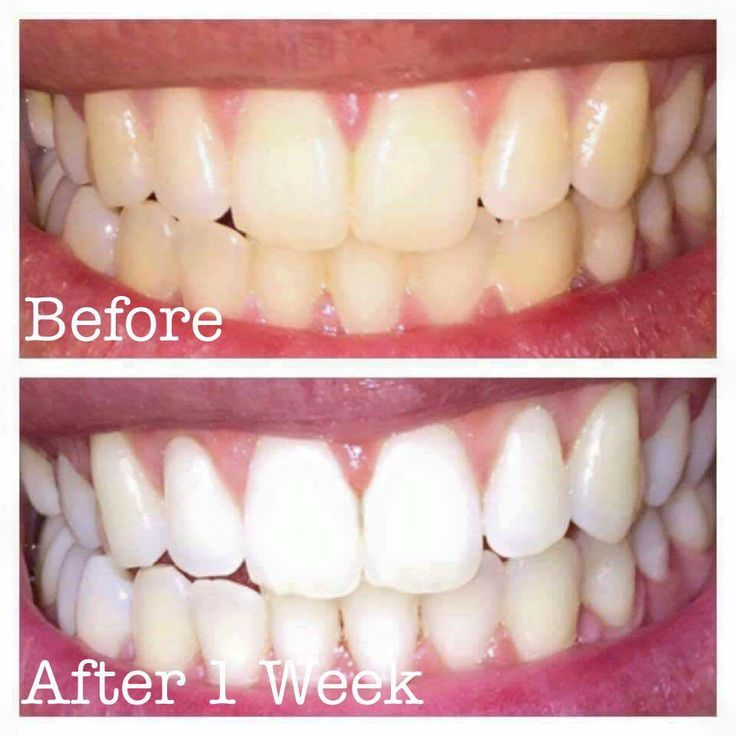 Amazing product safe for sensitive teeth message me for details
