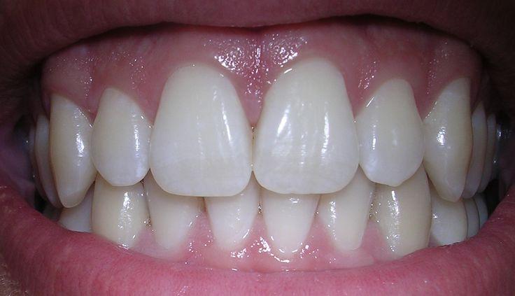 Zánět dásní by měl být jako jakýkoliv jiný zánět urgentně léčen. V opačném případě může dojít k rozšíření infekce, k poškození zubních kořenů a dokonce i k parodontóze. Návštěva lékaře je většinou nevyhnutelná. S našimi recepty ale k zubaři nemusíte! Sůl Připravte si solný roztok na vyplachování ústní dutiny. Sůl totiž snižuje otoky a navíc …