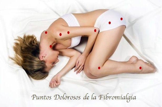 Acupuntura y Fibromialgia
