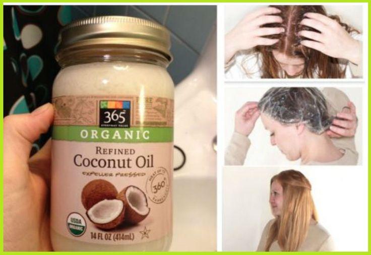 Use aceite el coco de esta manera para evitar que su cabello se caiga o se rompa!El aceite de coco ofrece una serie de beneficios para la salud y se puede utilizar para una serie de cosas. Es por eso que su popularidad ha crecido e...