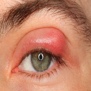 how to clear up a stye in the eye