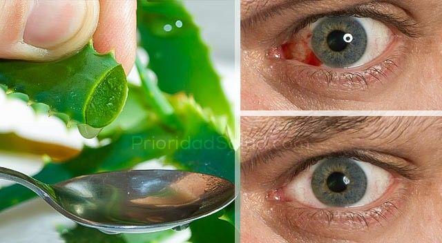 El Aloe Vera es un magnífico remedio contra diferentes tipos de infección y problema de la vista.\r\n[ad]\r\nYa que contiene enorme cantidad de vitamina A, potasio, vitamina C, vitaminas del complejo B y proteínas, el Aloe Vera, conocido también como la sábila, ayuda a mejorar ciertos trastornos de la visión como cataratas, ojo seco, glaucoma, infecciones, irritación y conjuntivitis.\r\n\r\nEl Aloe Vera tiene la ventaja de ser más suave para los ojos que otros remedios más conocidos, y su…