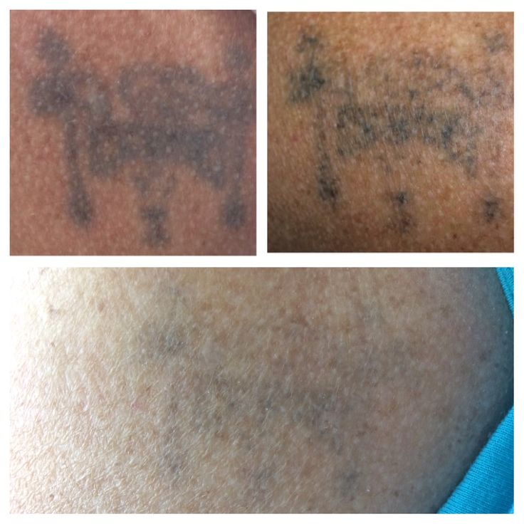 Before and after 2 treatments with yag q switch power. Clean Canvas Tattoo Removal Halifax Nova Scotia
