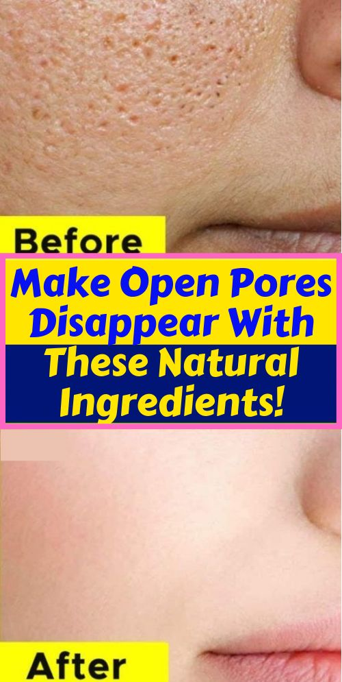 Pores are an opening to a hair follicle which mean…